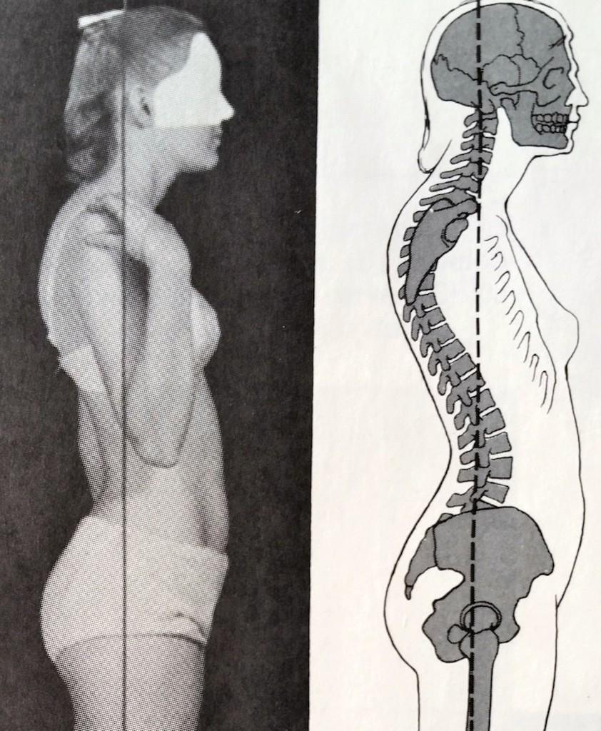 Lower Back Pain | The Hip Flexor Fix